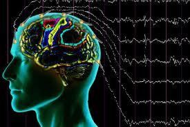 Epilepsi Hastaları Yaşamlarında Nelere Dikkat Etmelidir?